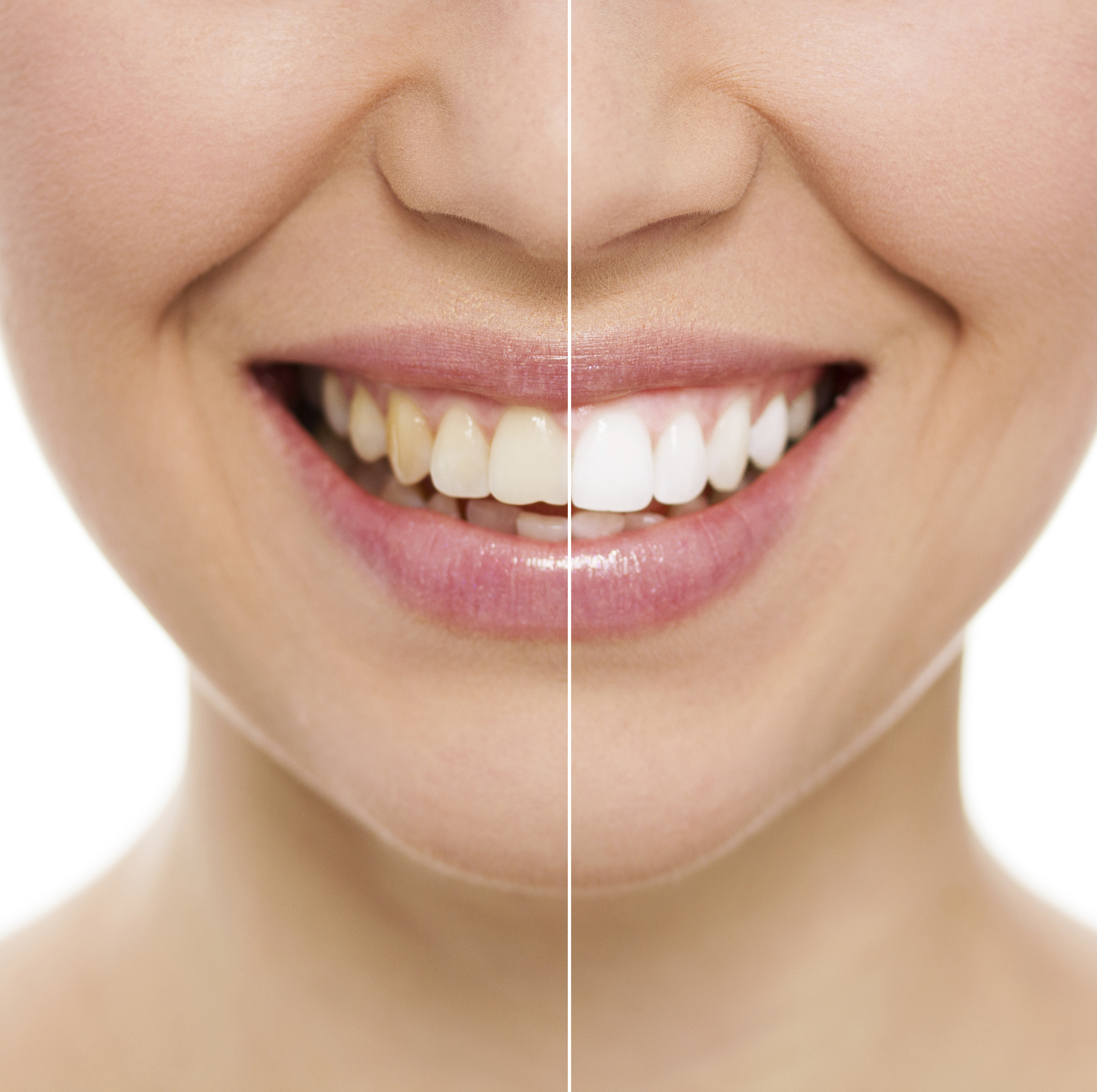 Cosmetic treatments available at a Wiltshire dentist